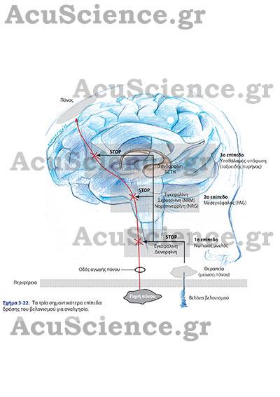 Επίπεδα Δράσης Βελονισμού Acuscience.gr