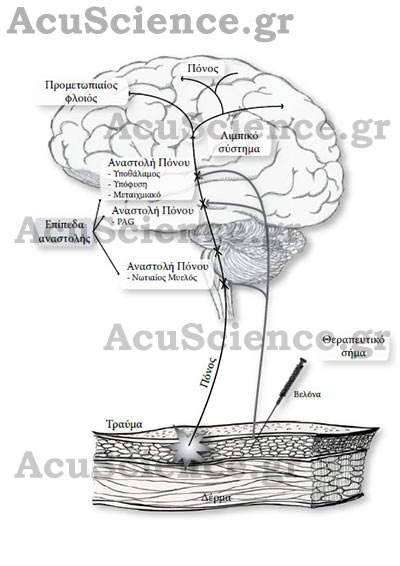 Πόνος και Βελονισμός Acuscience.gr