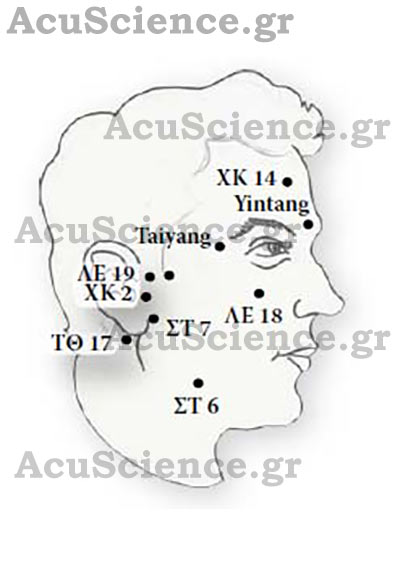 Σημεία Βελονισμού στο Πρόσωπο ACU SCIENCE