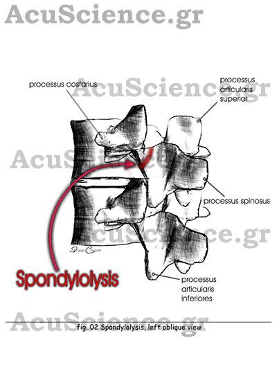 Spondylolysis Βελονισμός Acuscience.gr