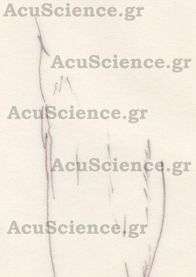 Εκπαίδευση στον Βελονισμό Acuscience.gr